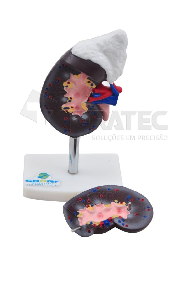 Rim com Glândula Adrenal em 2 Partes - SD-5051