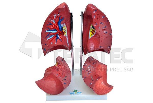 Pulmão em 4 Partes - SD-5055-D