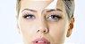 Combo Cinderela - Botox Completo + Seven Peel - Imagem 2