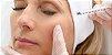 Combo Cinderela - Botox Completo + Seven Peel - Imagem 3