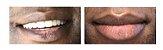 Cysteamine 5% (cisteamina) 30g creme para tratamento melasmas - Imagem 4