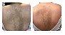 Cysteamine 5% (cisteamina) 30g creme para tratamento melasmas - Imagem 3