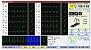 Sistema de Ergometria Kit APEX 1000 TEB - Sem Informática e Sem Mesa - Imagem 2