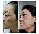 Kit Manchas Clareamento Rosto  Jeunesse  Tratamento Dermocosméticos  (4 Produtos) - Imagem 2