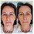 Máscara Lifting - Reduz Manchas, Rugas, Clareia E Firmeza - Jeunesse - Imagem 6