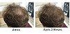 Fortalecedor Capilar Hair UP 60 Cápsulas - Ekobé - Imagem 2