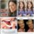 Prótese Snap On Smile - Encaixe o Sorriso Perfeito  - Sorriso de Hollywood - Imagem 3