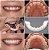 Prótese Snap On Smile - Encaixe o Sorriso Perfeito  - Sorriso de Hollywood - Imagem 4