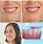 Removedor de Tártaro Portátil Teeth-Touch Led - Imagem 3
