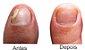 Micozione fortalecedor e reparador de unhas - Imagem 2