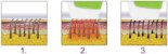 Depilador Laser Care Pro DL150 Todo Corpo Bivolt Branco/Roxo - Imagem 6