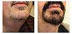 Kit Minoxidil Kirkland 5% For Men  (6 frascos de 60ml) - Imagem 5