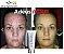 Kit ACNE Jeunesse Dermocosméticos - Limpeza Serum Mascara Hidratante - Imagem 2