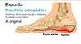 Chinelo Sandália Ortopédica Fascite Plantar Esporão Calcâneo - Imagem 4