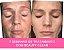 Beauty clean-O CREME QUE EXPULSA  MANCHAS E MELASMA DO SEU ROSTO! (GARANTIDO) - Imagem 3