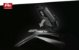 SHAD X012PS SUPORTE BOLSA DE TANQUE PIN SYSTEM PARA YAMAHA MT-07 E MT-09 TRACER - Imagem 4