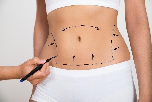 Laser-lipólise laser-lipo ideal para baixo ventre e/ou papada em uma área localizada (~200cm2). Segura, confortável, realizada por Fisioterapeuta. Combo com 4 visitas!