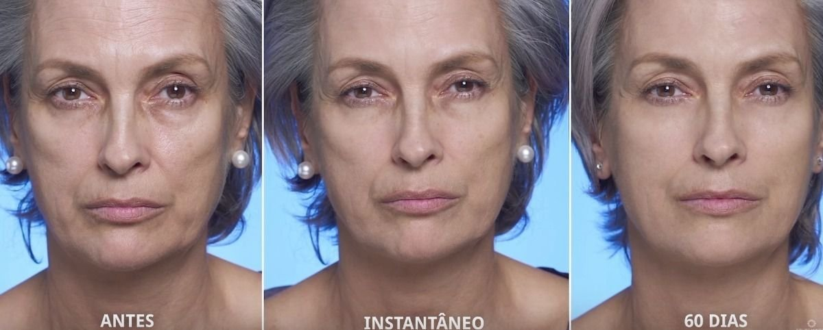 ROUTINE AGE REVERSE BOOSTER TREATMENT